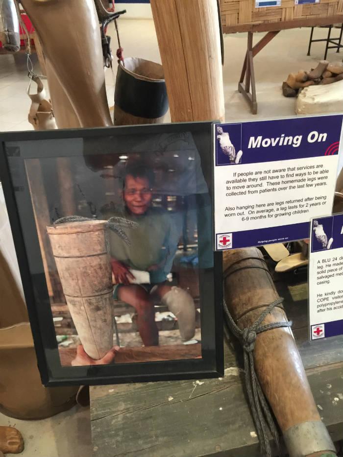 Foto van een foto en informatiebord in het COPE Visitor Centre waar een oude prothese van een van de slachtoffers tentoongesteld wordt.